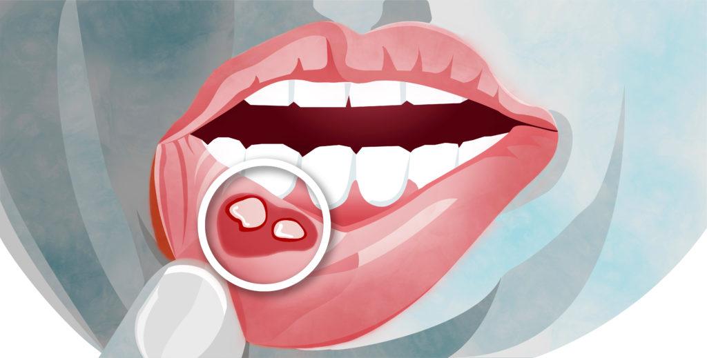 口内炎の原因と予防