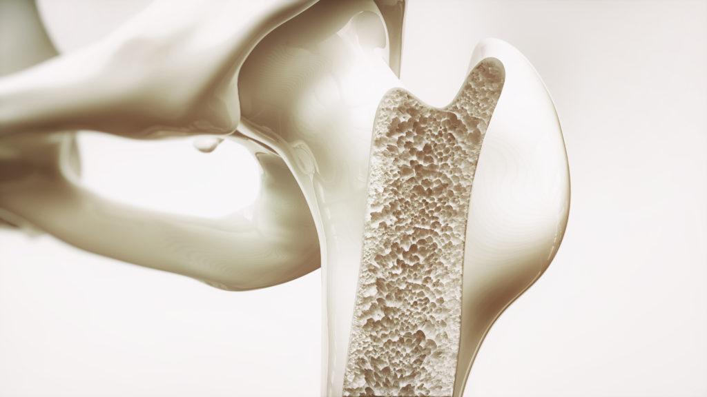 骨粗鬆症予防